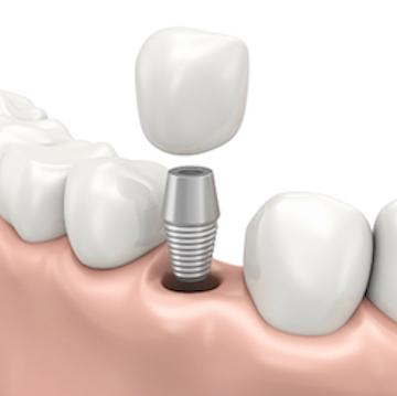 dental implants | shipp family dentistry | columbus, ms