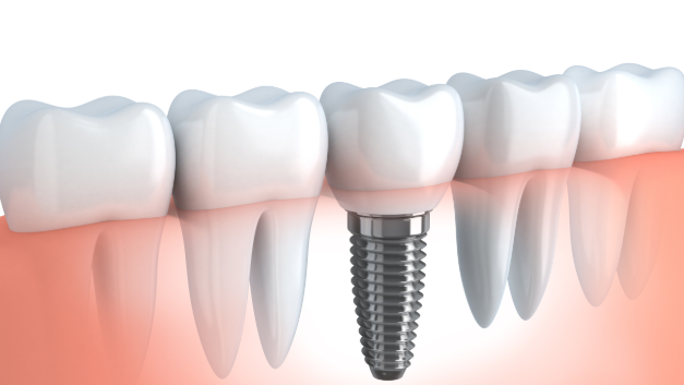 diagram of a dental implant | dental implants columbus ms