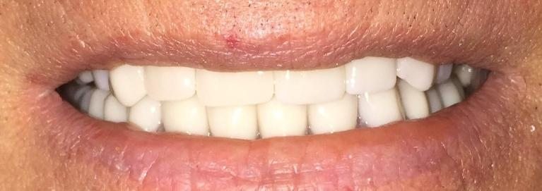 Crowns-and-Denture-After-Image