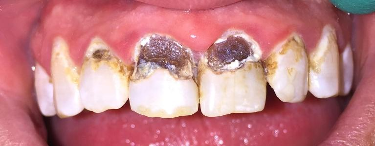 Large Dark Cavities | Tooth Decay